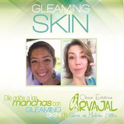 tratamiento para manchas en la cara